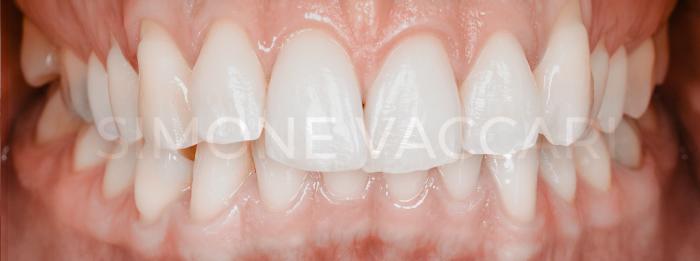 sbiancamento denti controindicazioni