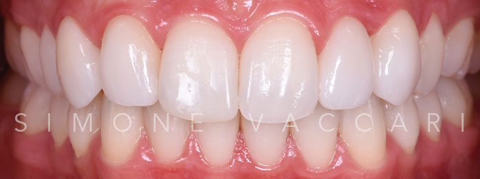 sbiancamento dentale reggio emilia