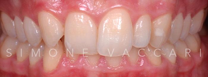 sbiancamento dentale modena