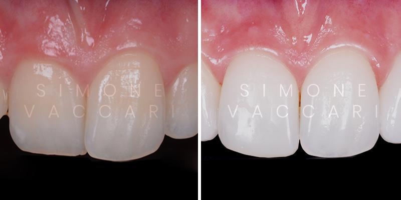 apparecchio linguale prima e dopo