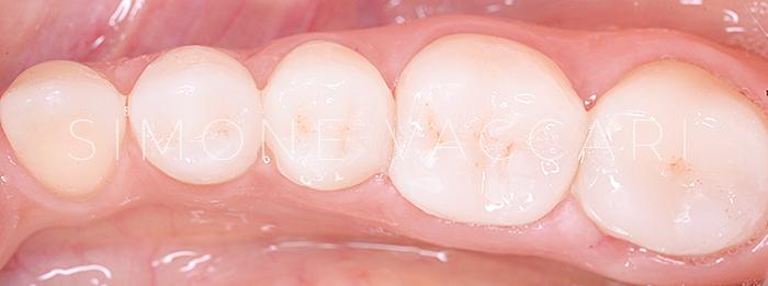 denti consumati prima e dopo