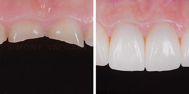 denti corti faccette dentali