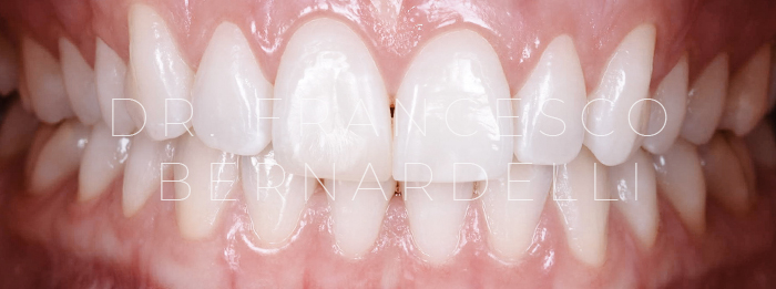 parodontite giovanile cura