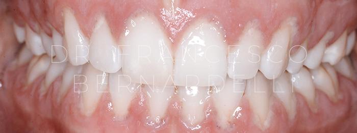 parodontite giovanile aggressiva