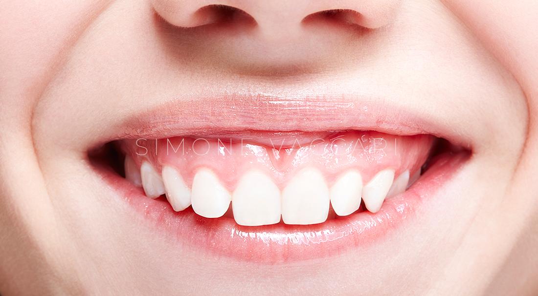 sorriso gengivale o gummy smile