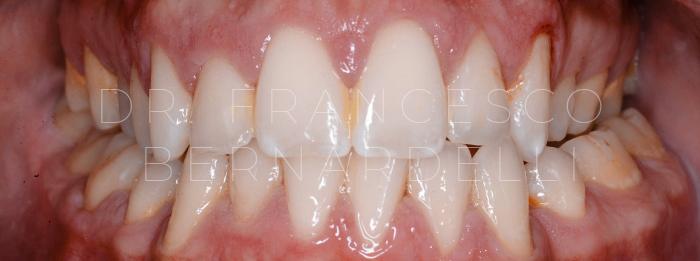 cura parodontite lieve