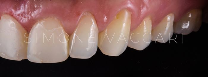 chipping denti dx