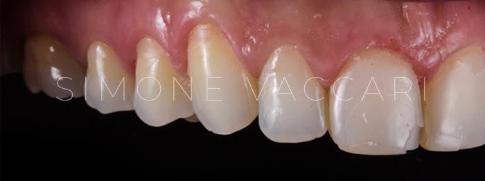 chipping denti sx