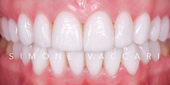 Faccette dentali - dopo