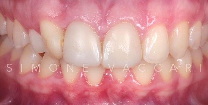 Faccette dentali - prima
