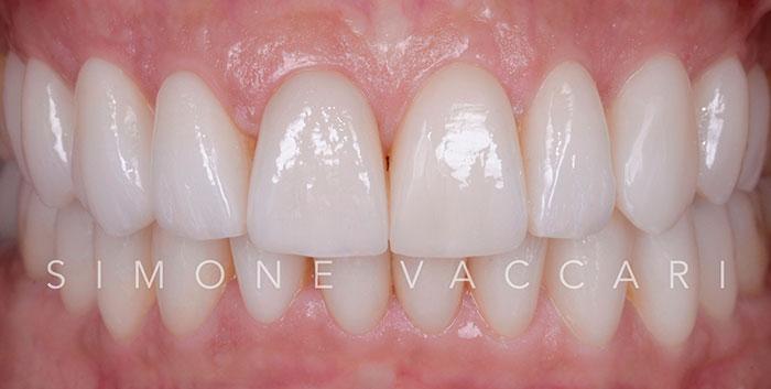 Faccette dentali in ceramica - dopo