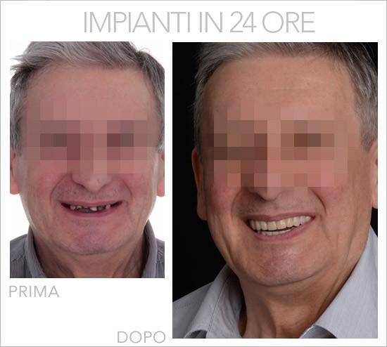 impianti-denti-in-24-ore-all-on-four