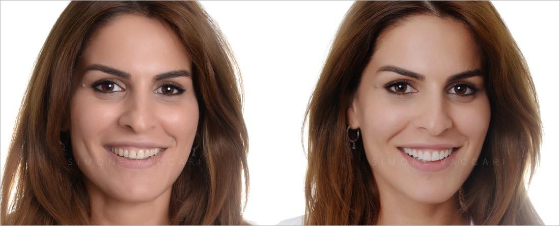 Simone Vaccari dentista Modena- Previsualizzazione estetica