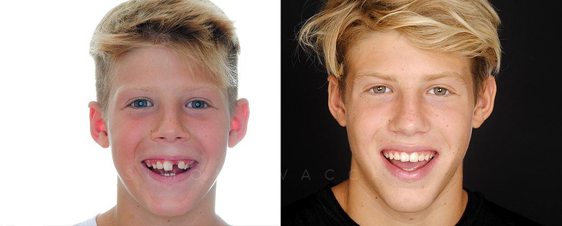 Ortodonzia linguale Invisibile - Simone-Vaccari-Studio-Dentistico-Odontoiatrico-a-Modena-Foto-Prima-e-Dopo